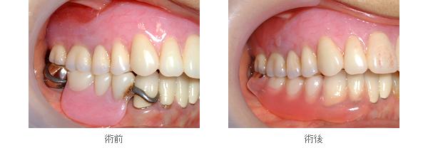 金属色が目立たない部分入れ歯ーノンクラスプデンチャー