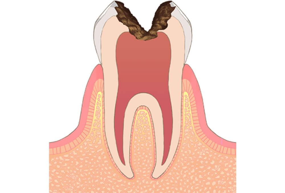 神経に到達した虫歯