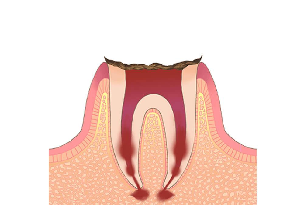 歯の根だけが残っている状態