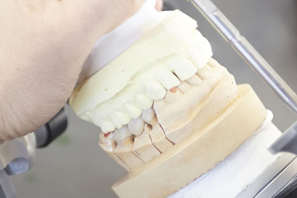 経験豊富な歯科技工士