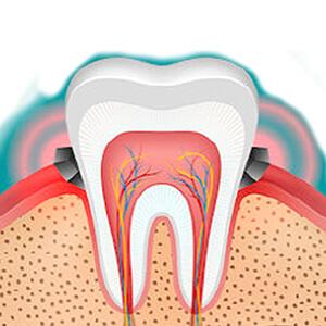 予防歯科診療・歯周病治療