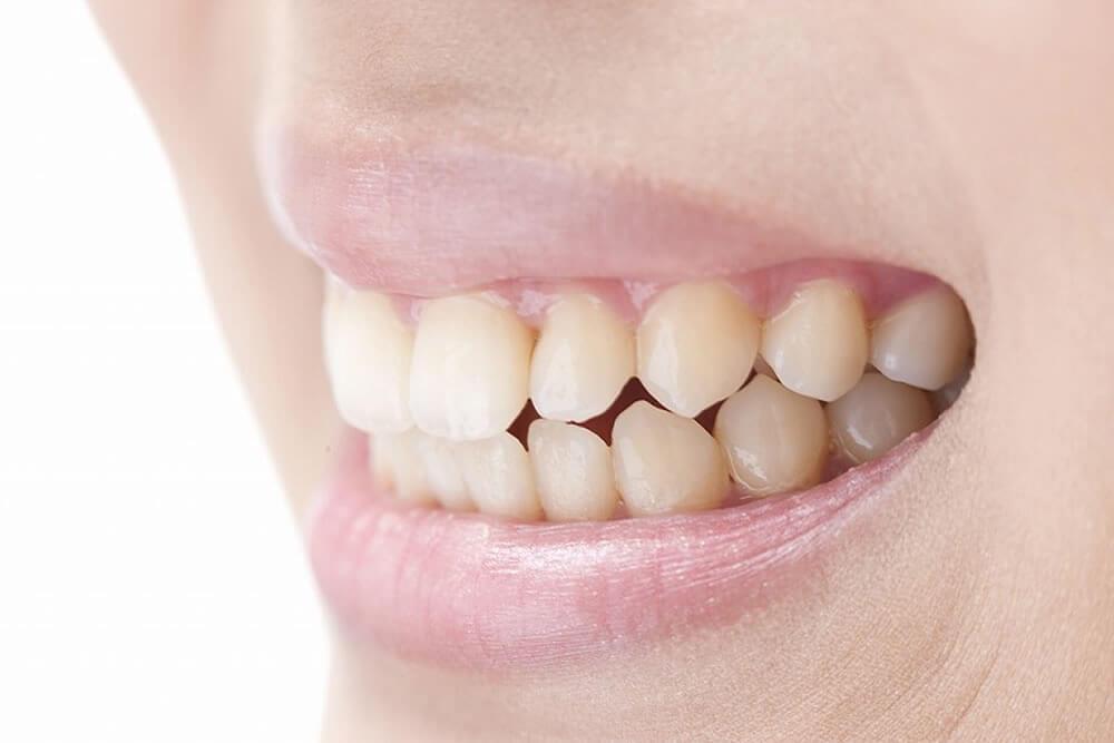 歯が黄ばむ仕組み